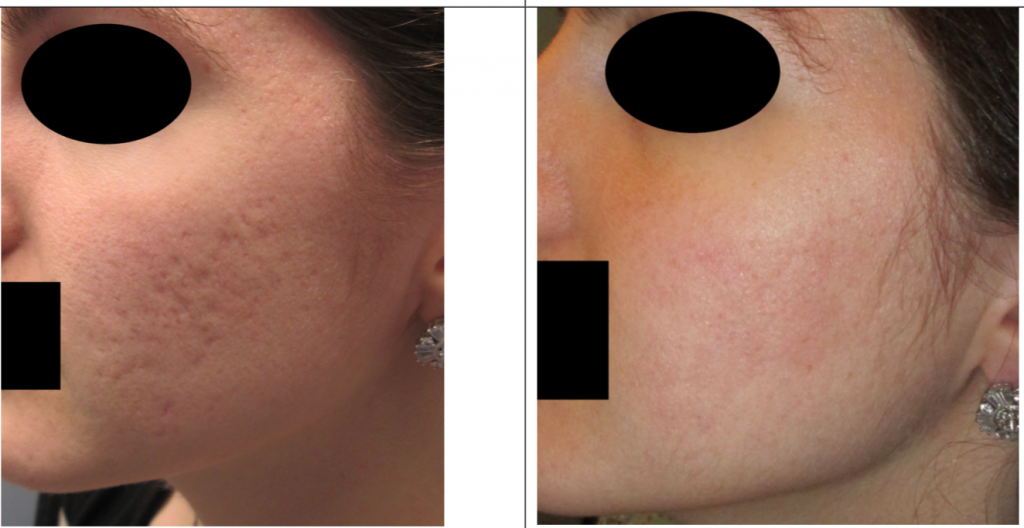 INFINI for acne scars