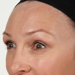 /Users/antonperry/Pictures/300109_A.Perry_Allergan/Output/14_Marshall/After/Botox-Lift/.Marshall_A_Botox-Lift_053.jpg