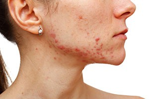 acne-treatments-brisbane