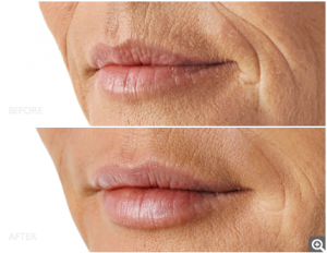 filler for upper lips