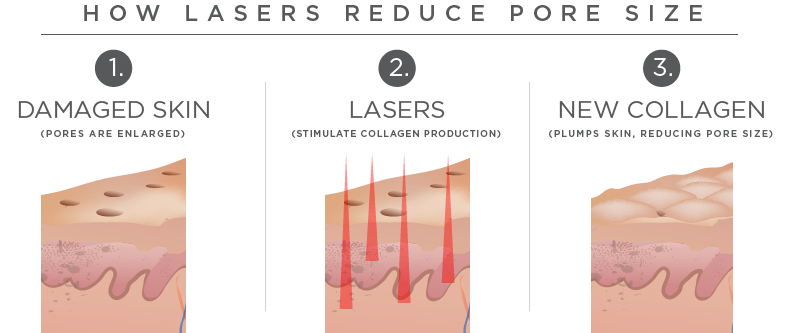 Pore Treatment Brisbane Reduce Pore Size By Dermatologist Dr