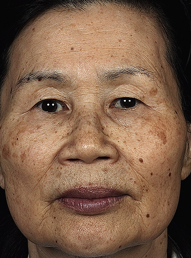 asian-skin-rejuvenation