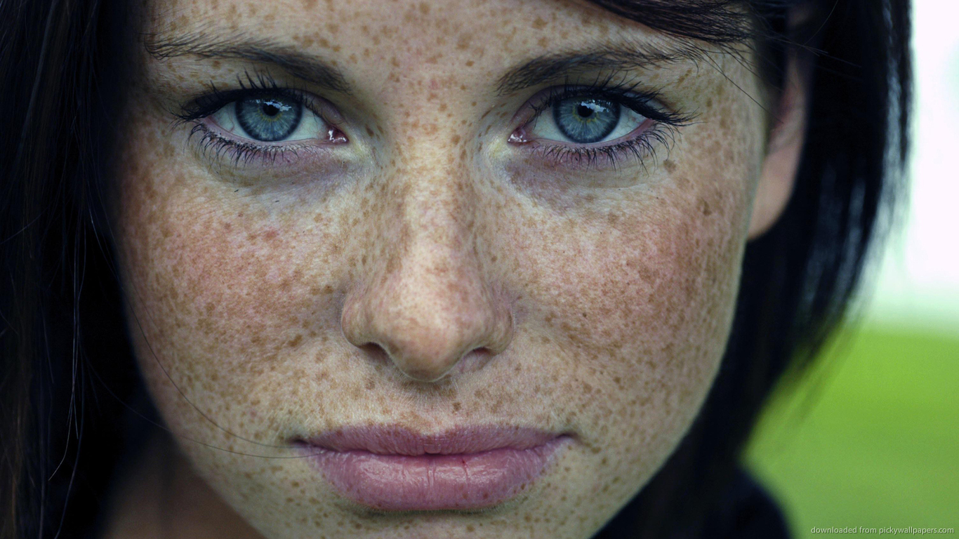 pigmentation freckles freckle solutions occur unlike cancerous treat forms areas chest such