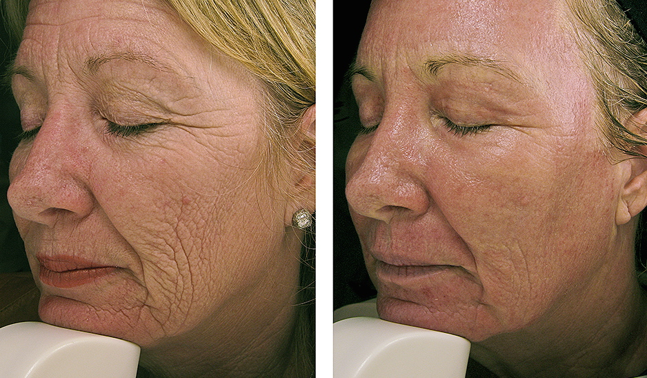 laser resurfacing brisbane