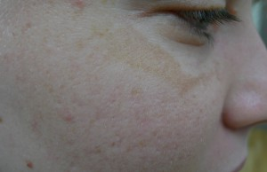 melasma treatment brisbane 2.0