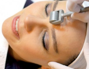 skin needling treatment