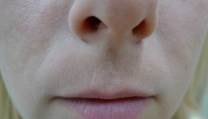 upper lip pigmentation