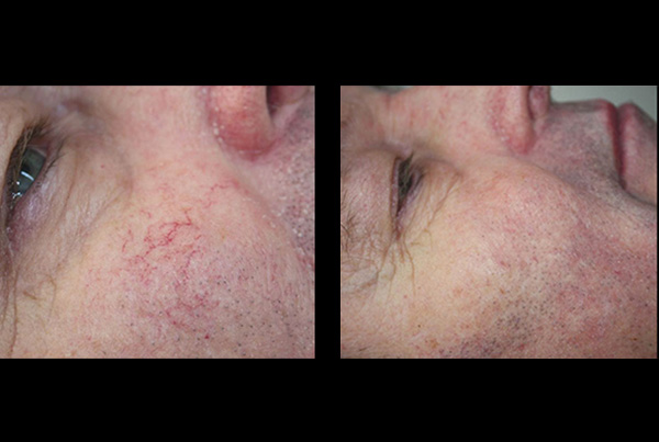 Blotchy red skin and veins B+A