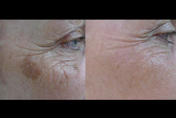 Facial Rejuvenation B+A
