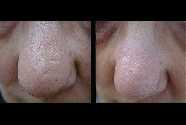 Reducing large pores B+A