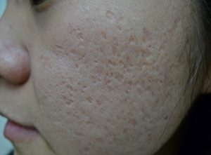 mixed acne scars