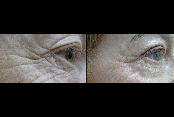 Wrinkle removal B+A