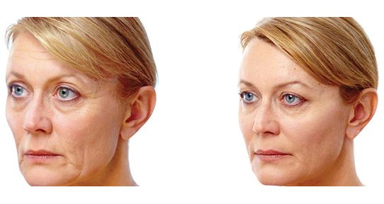 juvederm gold coast filler