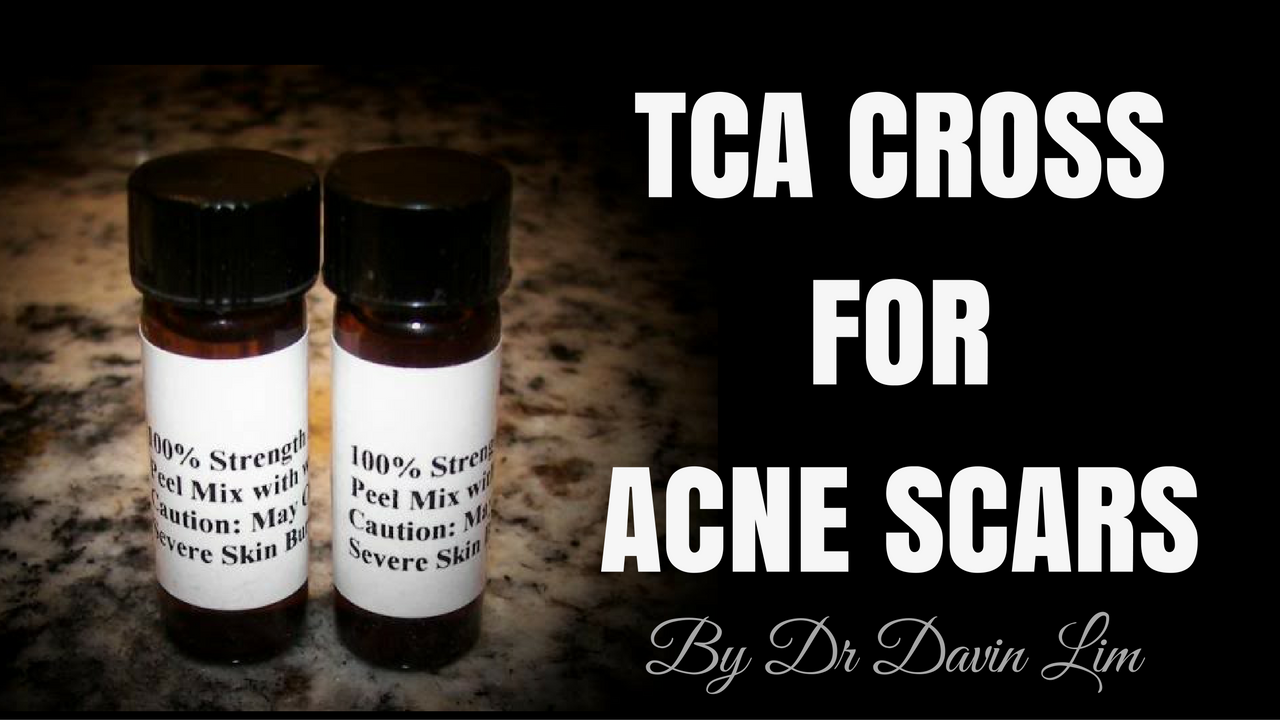 TCA CROSS for acne scars - Lasers & Lifts