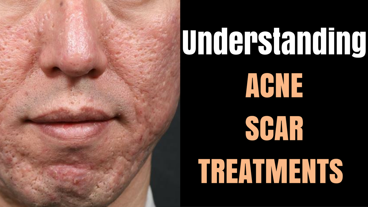 Acne Scars Before And After By Dr Davin Lim Lasers Lifts
