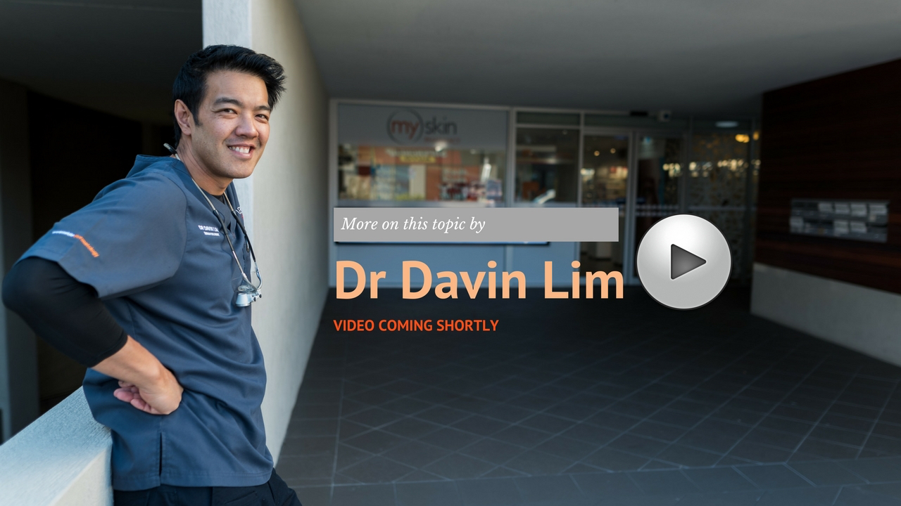 Micro needling Infini RF| by Dr Davin Lim, Lasers & Lifts