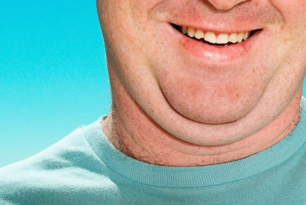 double chin treatment