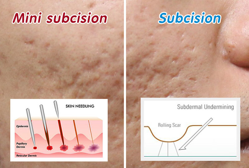 Acne Scars Treatments Subcision By Dr Davin Lim