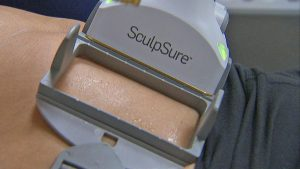 brisbane-sculpsure