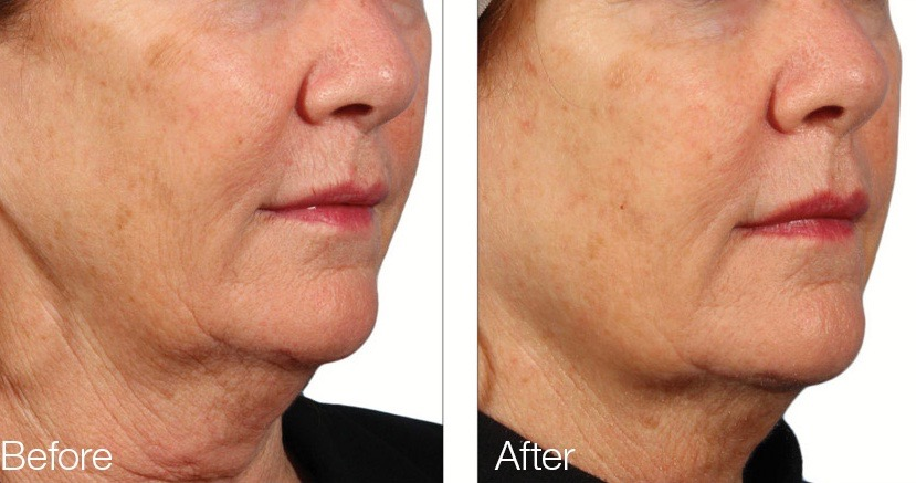 Microneedling Treatments Improves Acne Scars Skin